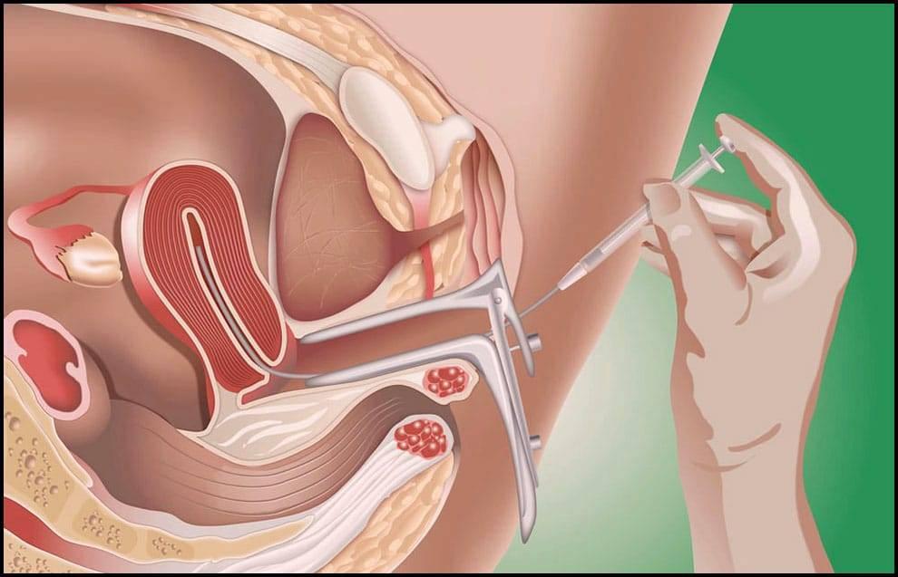 اعراض سقوط اللولب من الرحم