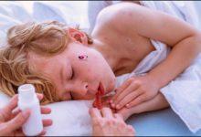 علاج الحمى عند الأطفال