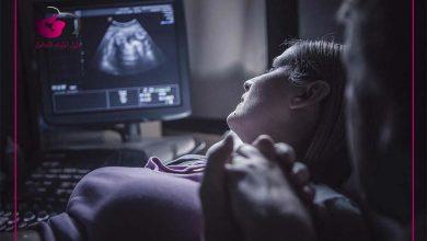 صورة متي ينزل دم تثبيت الحمل : الفرق بين دم التثبيت ودم الدورة الشهرية
