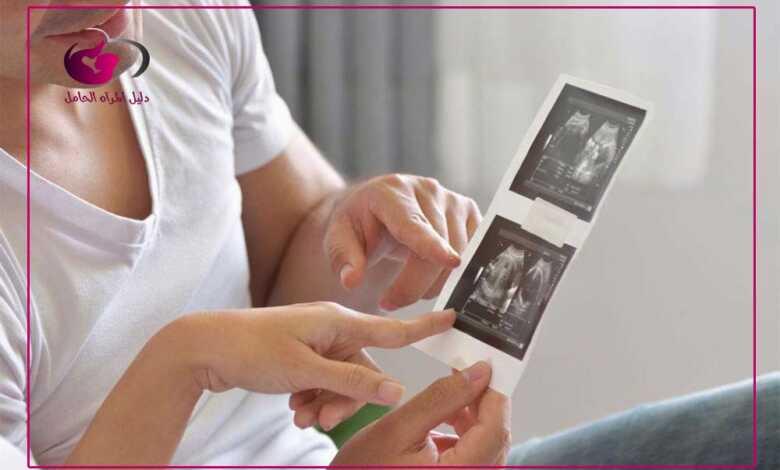 جدول اسابيع الحمل