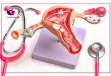 شكل دم الإجهاض