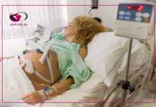 صورة كم عملية قيصرية يتحمل الرحم
