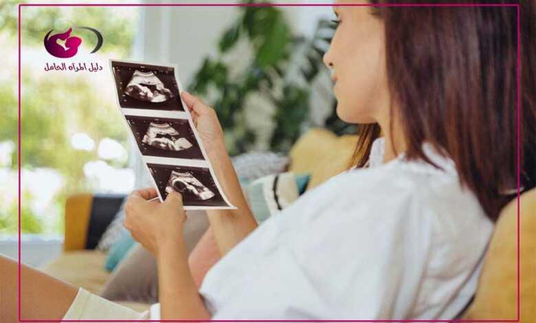 الأسبوع السابع من الحمل