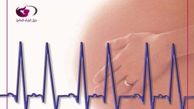 Photo of متى يظهر نبض الجنين لدى الحامل
