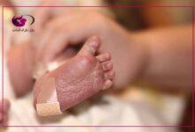 صورة الولادة المبكرة أسبابها وأهم أعراضها