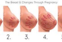 صورة نوع الجنين من لون الثدي